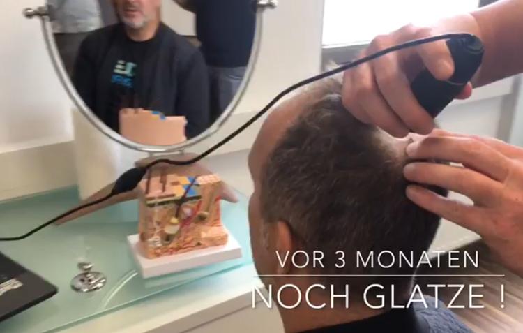 Haaranalyse Diagnose durch mikroskopische Haaranalyse