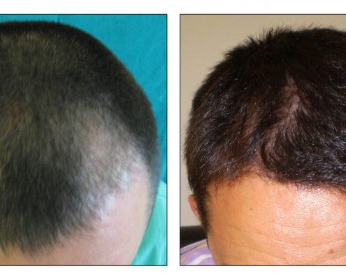 Haartransplantation Headdress Linz, Vorher Nachher Foto