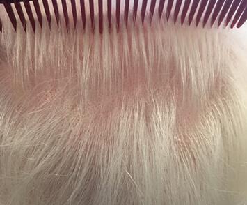 Volumed Therapie Alopezie männlich Termin 2