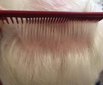 Volumed Therapie Alopezie männlich Termin 3